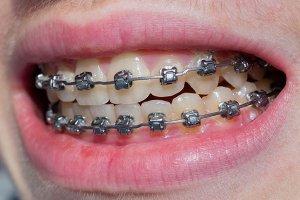 Metal Orthodontic Brackets correct crossbite