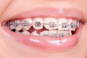 Metal Orthodontic Brackets correct open bite problem
