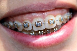 Metal orthodontic brackets correct overbite