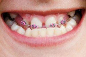 Metal Orthodontic Brackets Correct Underbite